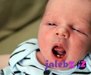 تولد نوزاد با دندان