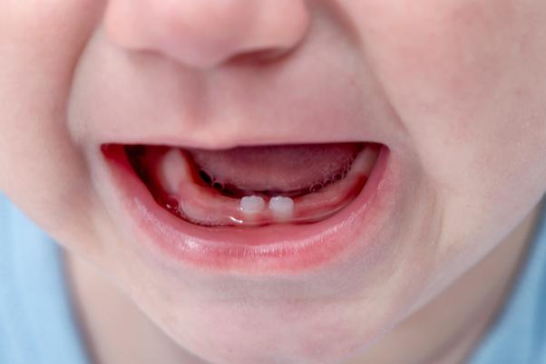رشد دندان نوزاد