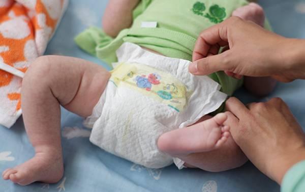 جوش نوزادان